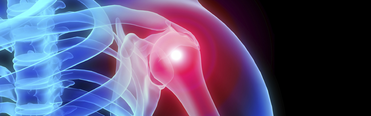 CSAW - investigating the effectiveness of surgery for shoulder impingement