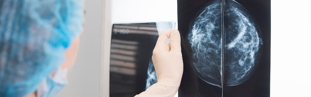 Radiographer reading a mammogram