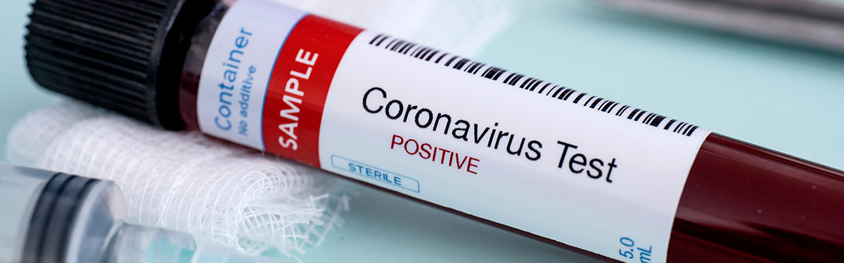 Coronavirus test sample